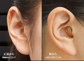 オンキョー「耳穴型デジタル補聴器OHS-D21」