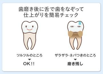 MISOKA(ミソカ)「歯ブラシ」磨き残しがないか、舌触りでセルフチェック