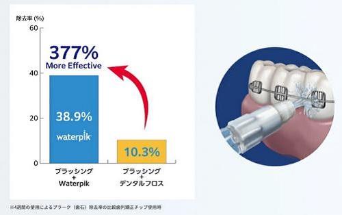 「ウォーターピック ウルトラプロフェッショナル」歯列矯正器具まわりも驚きの除去効果!