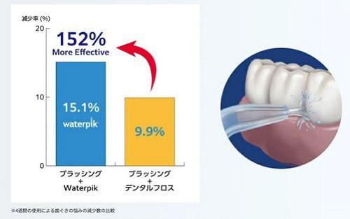 口内洗浄器「ウォーターピック ウルトラプロフェッショナル」しっかり落とすから歯茎の健康に効果的!